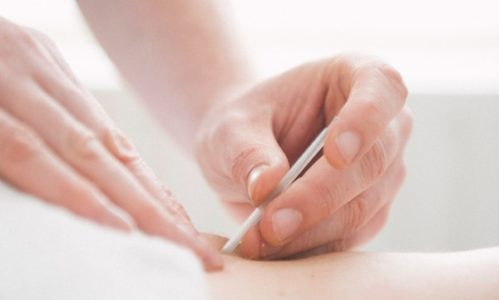 DRY NEEDLING & TRIGGER POINT THERAPY